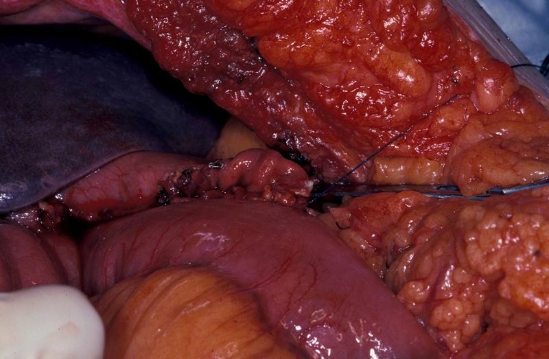 gallbladder symptoms women foods to avoid